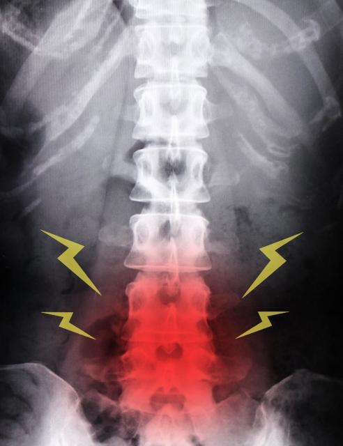 腰骨に炎症があるレントゲン写真